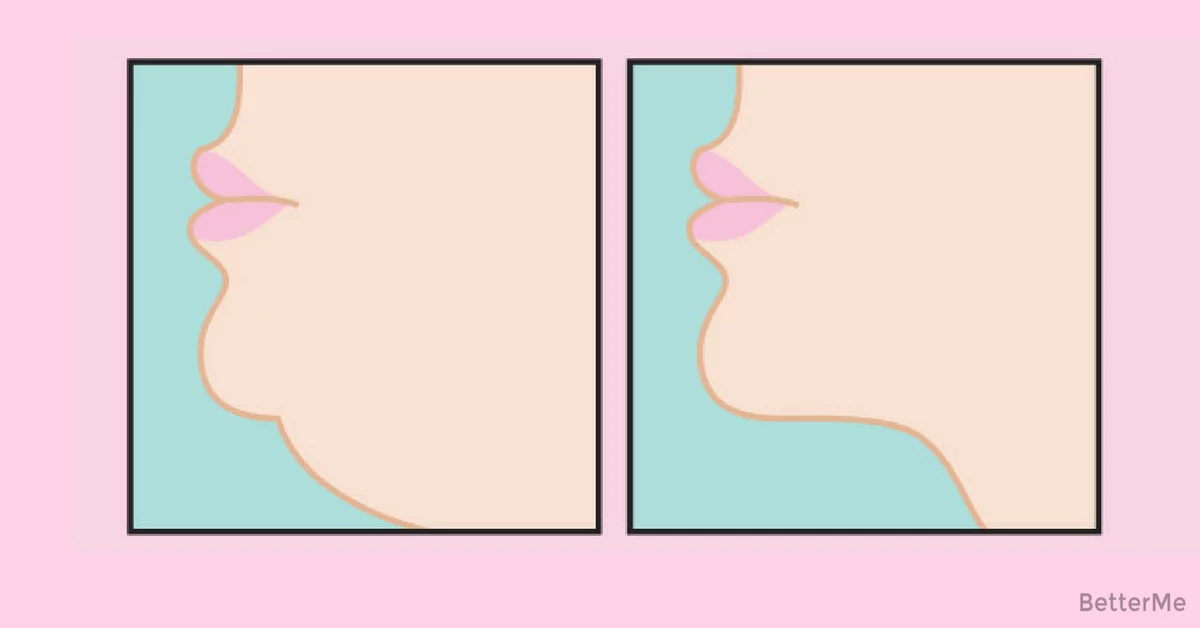 how to get rid of a double chin overnight